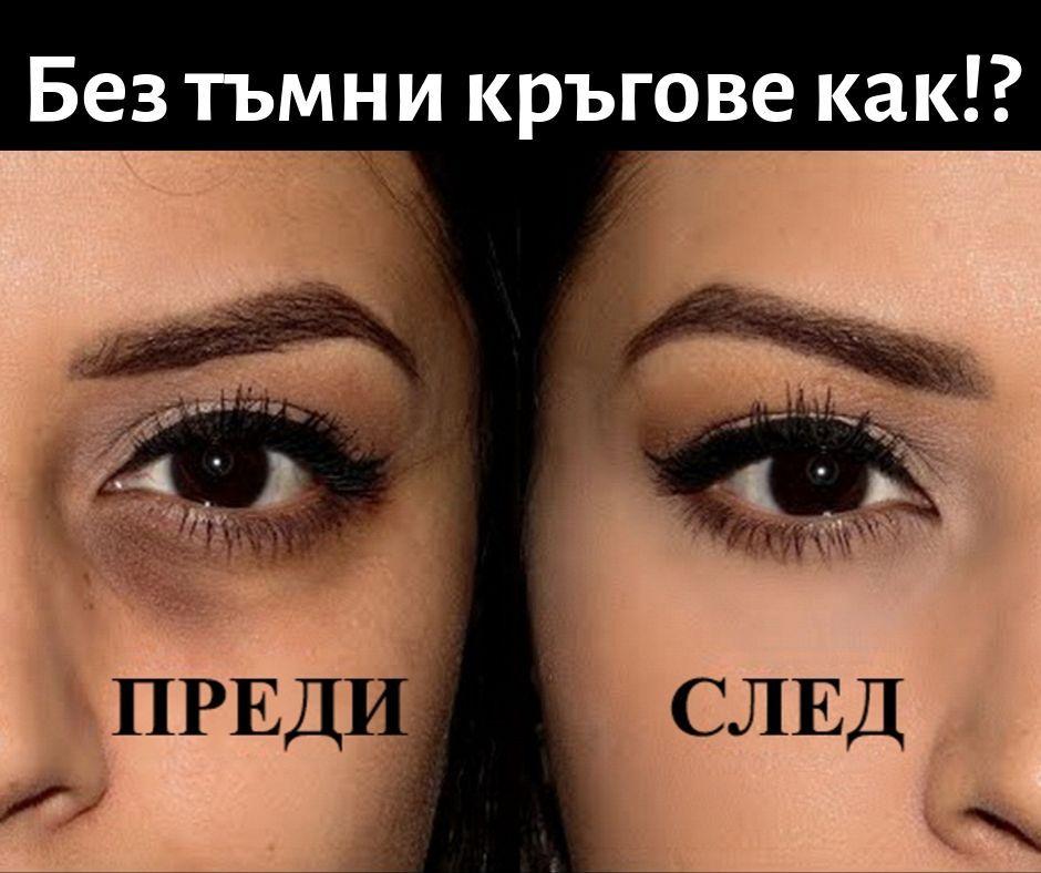 Тайни и съвети за премахване на тъмните кръгове около очите.